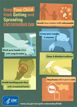 CDC Enterovirus D68 Infographic